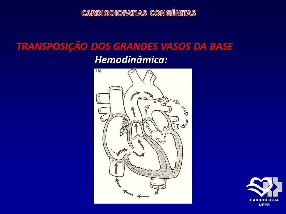 TRANSPOSIÇÃO DOS GRANDES VASOS DA BASE Hemodinâmica: Hemodinâmica: saturações de oxigênio e pressões (círculo) saturações de oxigênio e pressões (círculo)