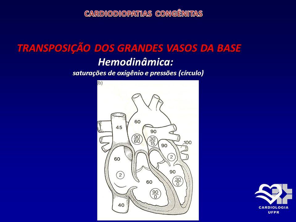 TRANSPOSIÇÃO DOS GRANDES VASOS DA BASE APRESENTAÇÃO: APRESENTAÇÃO: É a cardiopatia congênita cianótica mais comum na primeira semana de vida.