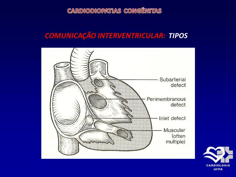 COMUNICAÇÃO INTERVENTRICULAR: ALTERAÇÕES HEMODINÂMICAS: SOBRECARGA DE VOLUME PARA CÂMARAS ESQUERDAS MAGNITUDE DO SHUNT: DEPENDE 1- Tamanho do defeito 2- Resistência vascular pulmonar