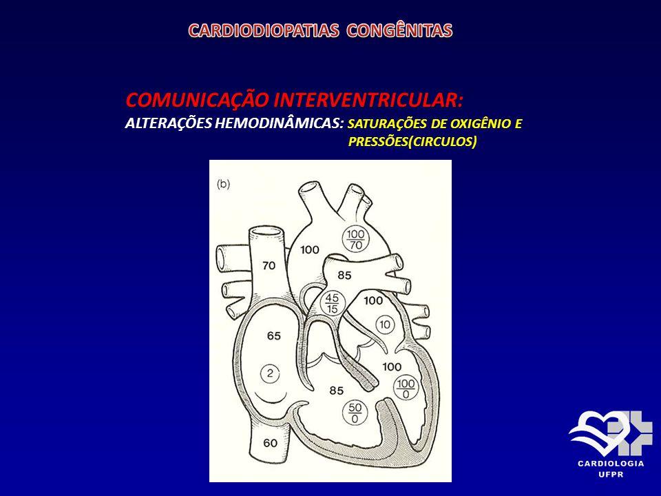 COMUNICAÇÃO INTERVENTRICULAR: SINTOMAS: Depende principalmente do fluxo sangüíneo pulmonar 1- PEQUENOS SHUNTS : ASSINTOMÁTICOS 2- GRANDES SHUNTS: DISPNÉIA INFECÇÕES PULMONARES RECORRENTES DÉFICIT NO DESENVOLVIMENTO ( alimenta-se mal)