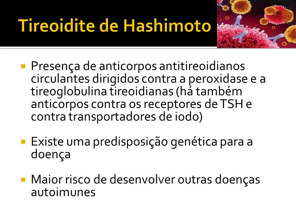  Presença de anticorpos antitireoidianos circulantes dirigidos contra a peroxidase e a tireoglobulina tireoidianas (há também anticorpos contra os re
