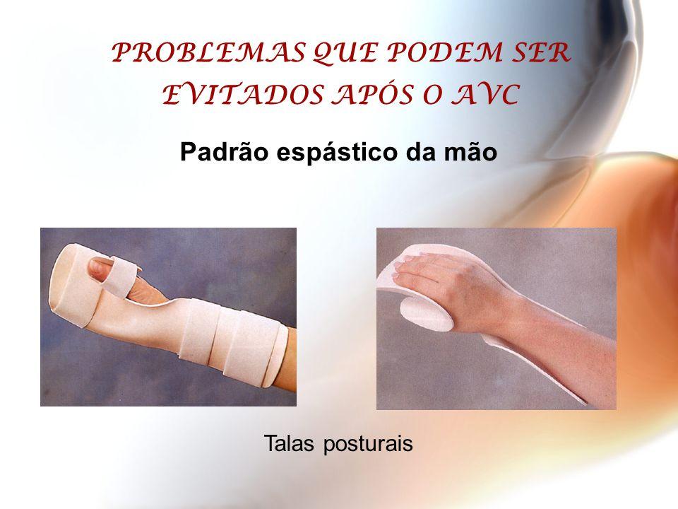 PROBLEMAS QUE PODEM SER EVITADOS APÓS O AVC Padrão espástico da mão Talas posturais