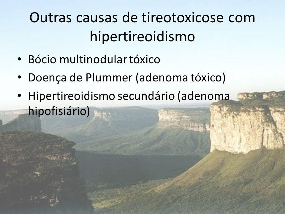 Outras causas de tireotoxicose com hipertireoidismo • Bócio multinodular tóxico • Doença de Plummer (adenoma tóxico) • Hipertireoidismo secundário (ad