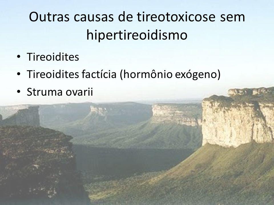 Outras causas de tireotoxicose sem hipertireoidismo • Tireoidites • Tireoidites factícia (hormônio exógeno) • Struma ovarii