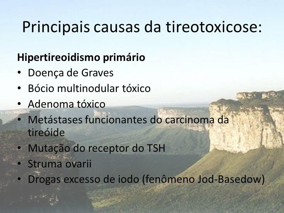 Principais causas da tireotoxicose: Tireotoxicose sem Hipertireoidismo • Tireóide subaguda • Tireoidite silenciosa • Destruição da glândula (amiodarona, infarto de um adenoma, radiação) • Ingestão excessiva de hormônio tireoidiano (tireotoxicose factícia)