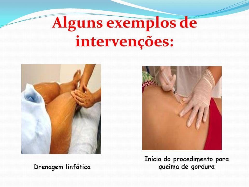 Alguns exemplos de intervenções: Drenagem linfática Início do procedimento para queima de gordura