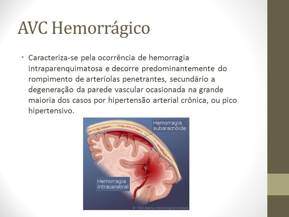 AVC Hemorrágico • Caracteriza-se pela ocorrência de hemorragia intraparenquimatosa e decorre predominantemente do rompimento de arteríolas penetrantes