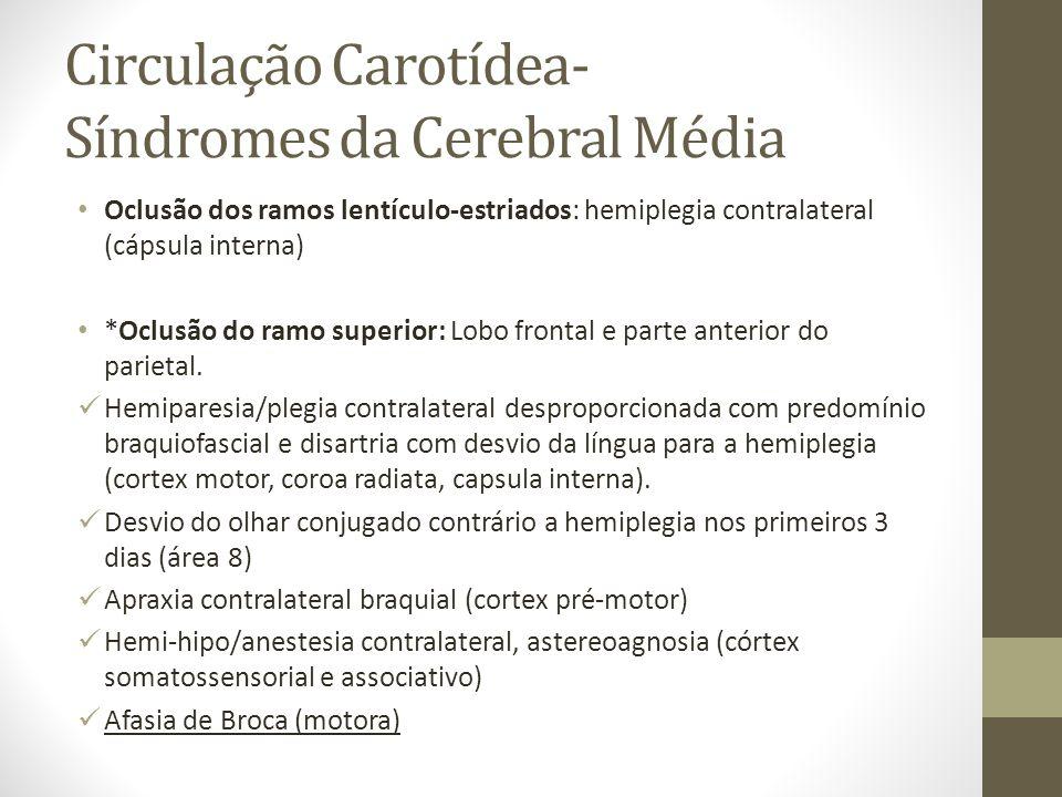 Circulação Carotídea- Síndromes da Cerebral Média • Oclusão dos ramos lentículo-estriados: hemiplegia contralateral (cápsula interna) • *Oclusão do ra
