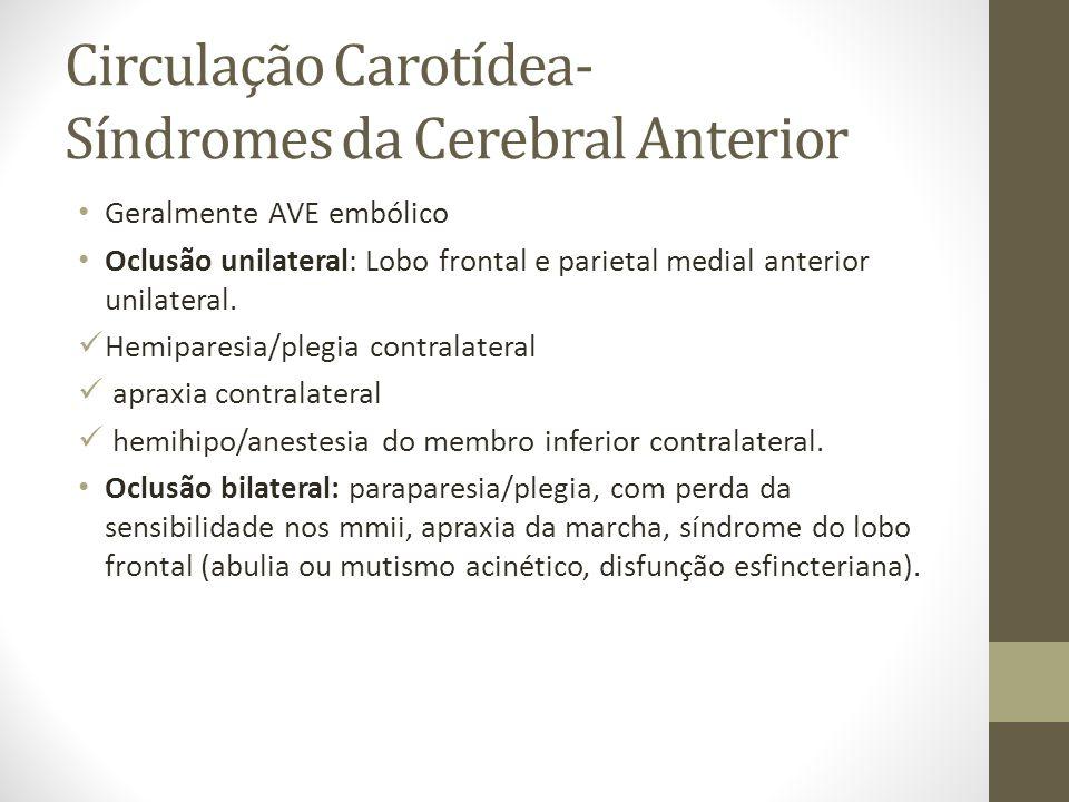 Circulação Carotídea- Síndromes da Cerebral Anterior • Geralmente AVE embólico • Oclusão unilateral: Lobo frontal e parietal medial anterior unilateral.