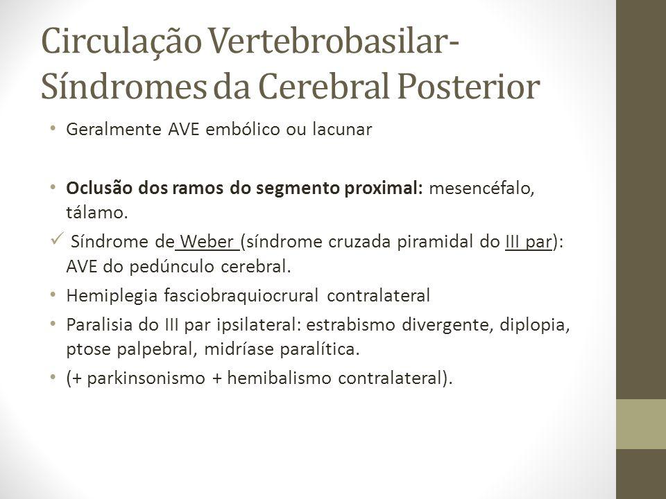 Circulação Vertebrobasilar- Síndromes da Cerebral Posterior • Geralmente AVE embólico ou lacunar • Oclusão dos ramos do segmento proximal: mesencéfalo, tálamo.