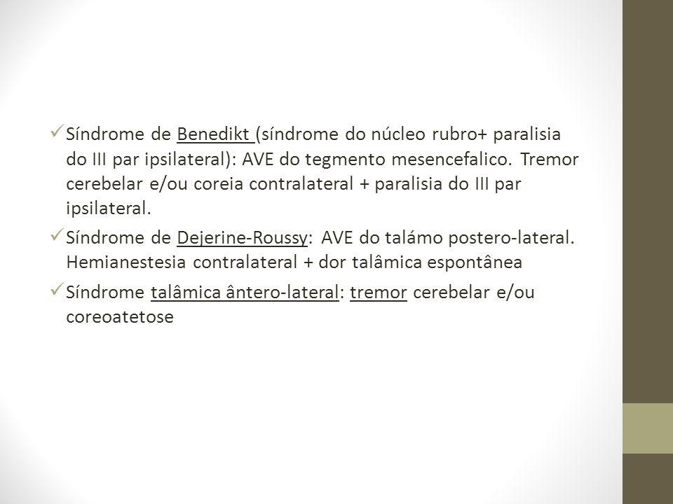  Síndrome de Benedikt (síndrome do núcleo rubro+ paralisia do III par ipsilateral): AVE do tegmento mesencefalico. Tremor cerebelar e/ou coreia contr