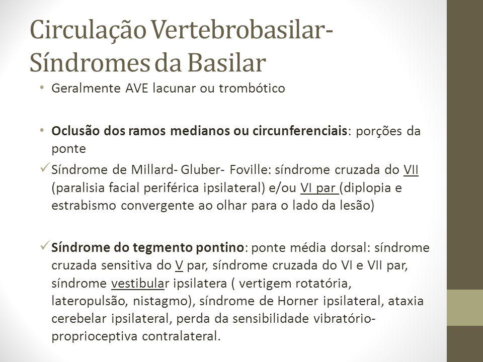 Circulação Vertebrobasilar- Síndromes da Basilar • Geralmente AVE lacunar ou trombótico • Oclusão dos ramos medianos ou circunferenciais: porções da ponte  Síndrome de Millard- Gluber- Foville: síndrome cruzada do VII (paralisia facial periférica ipsilateral) e/ou VI par (diplopia e estrabismo convergente ao olhar para o lado da lesão)  Síndrome do tegmento pontino: ponte média dorsal: síndrome cruzada sensitiva do V par, síndrome cruzada do VI e VII par, síndrome vestibular ipsilatera ( vertigem rotatória, lateropulsão, nistagmo), síndrome de Horner ipsilateral, ataxia cerebelar ipsilateral, perda da sensibilidade vibratório- proprioceptiva contralateral.