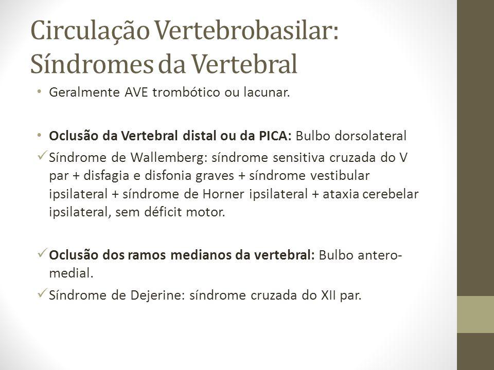 Circulação Vertebrobasilar: Síndromes da Vertebral • Geralmente AVE trombótico ou lacunar. • Oclusão da Vertebral distal ou da PICA: Bulbo dorsolatera