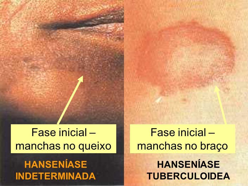 HANSENÍASE INDETERMINADA HANSENÍASE TUBERCULOIDEA Fase inicial – manchas no queixo Fase inicial – manchas no braço