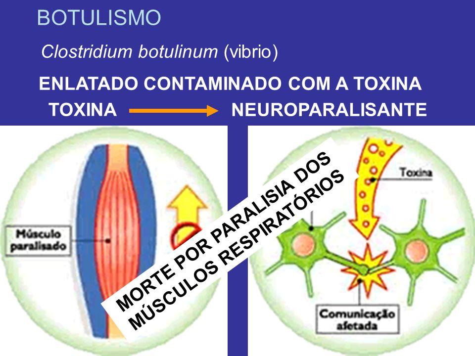 BOTULISMO Clostridium botulinum (vibrio) ENLATADO CONTAMINADO COM A TOXINA NEUROPARALISANTE TOXINA M O R T E P O R P A R A L I S I A D O S M Ú S C U L O S R E S P I R A T Ó R I O S