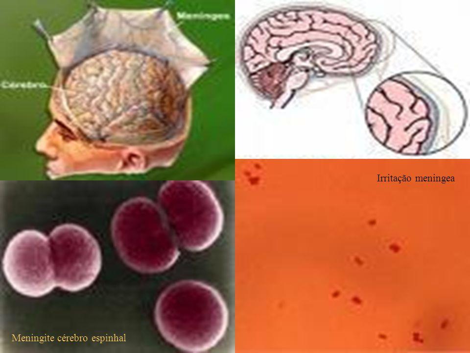 Irritação meningea Meningite cérebro espinhal