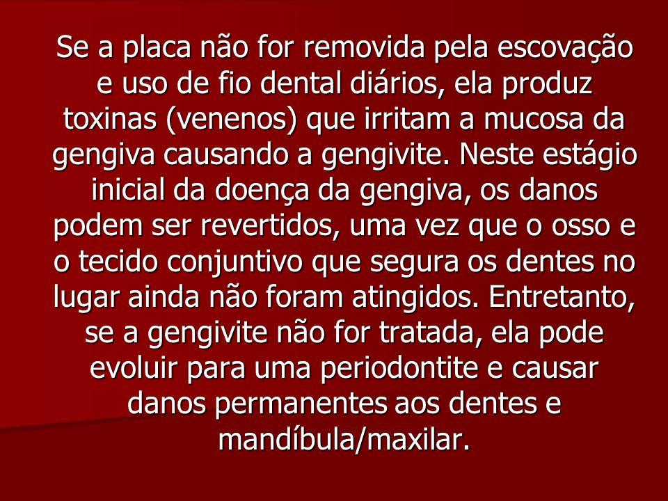 Se a placa não for removida pela escovação e uso de fio dental diários, ela produz toxinas (venenos) que irritam a mucosa da gengiva causando a gengiv
