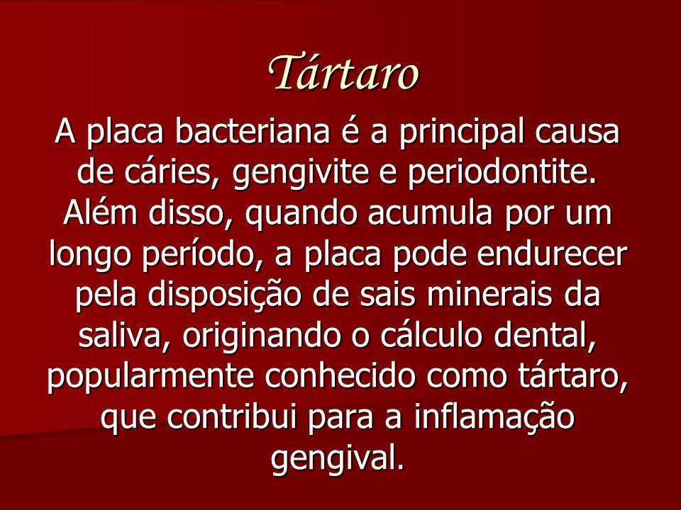 Tártaro A placa bacteriana é a principal causa de cáries, gengivite e periodontite. Além disso, quando acumula por um longo período, a placa pode endu