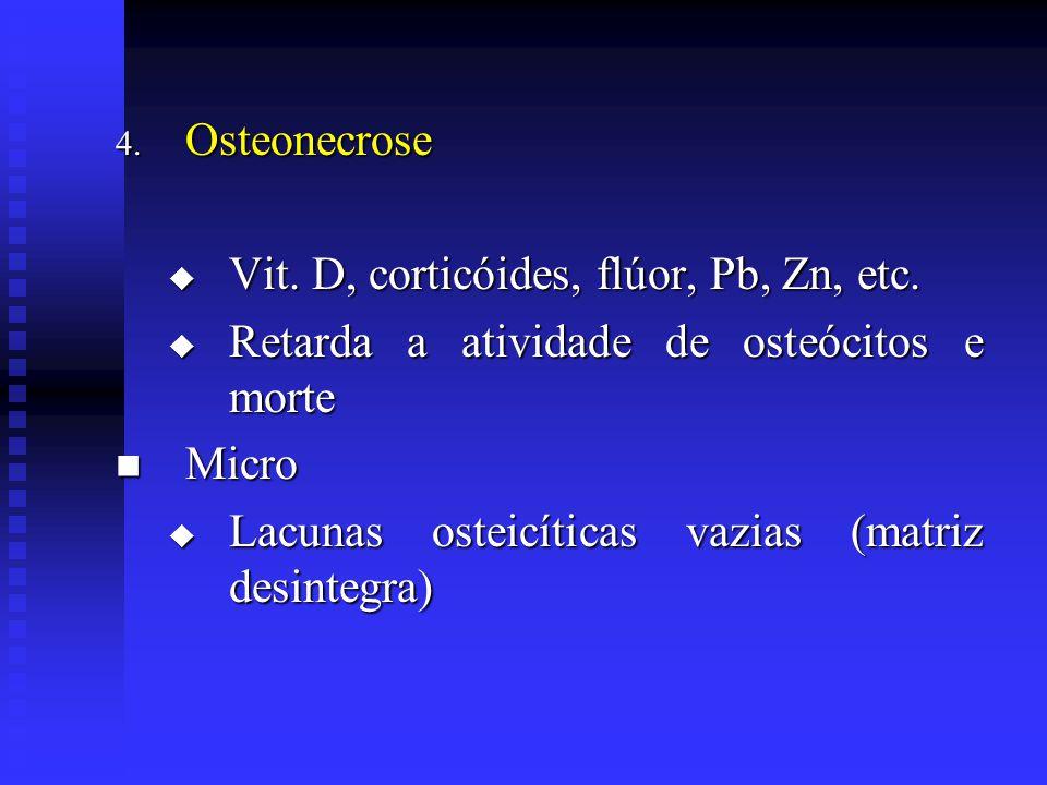 4. Osteonecrose  Vit. D, corticóides, flúor, Pb, Zn, etc.  Retarda a atividade de osteócitos e morte  Micro  Lacunas osteicíticas vazias (matriz d
