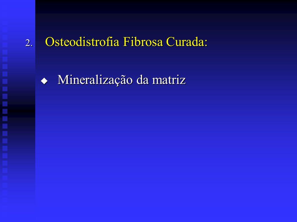 2. Osteodistrofia Fibrosa Curada:  Mineralização da matriz