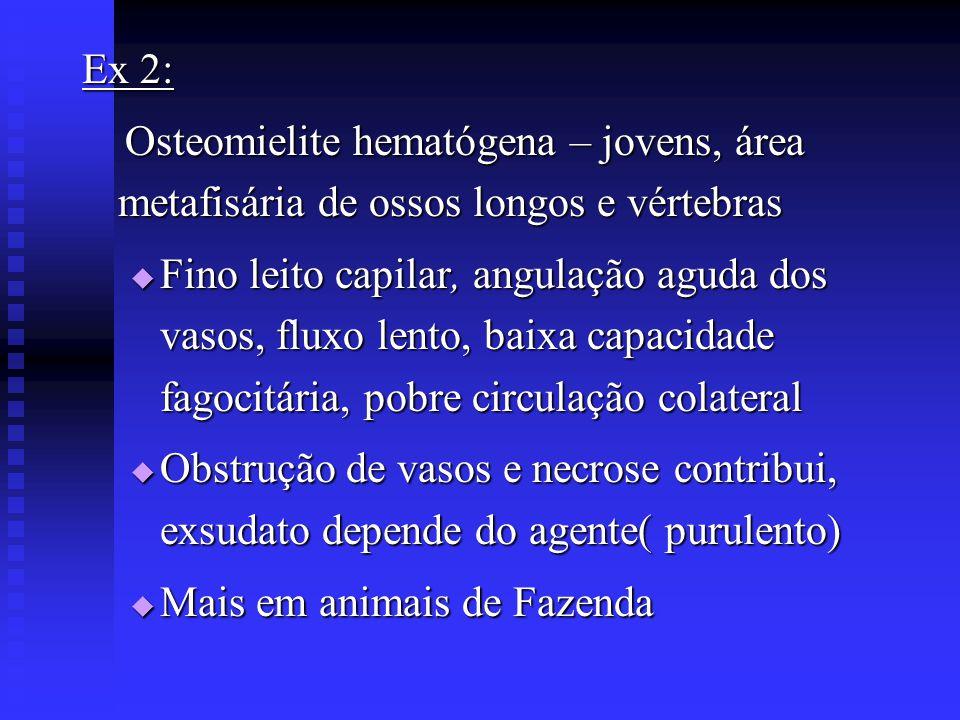 Ex 2: Osteomielite hematógena – jovens, área metafisária de ossos longos e vértebras Osteomielite hematógena – jovens, área metafisária de ossos longo