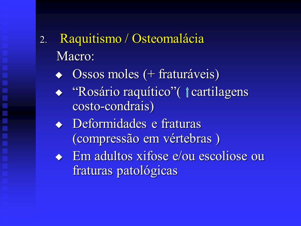 """2. Raquitismo / Osteomalácia Macro: Macro:  Ossos moles (+ fraturáveis)  """"Rosário raquítico""""( cartilagens costo-condrais)  Deformidades e fraturas"""