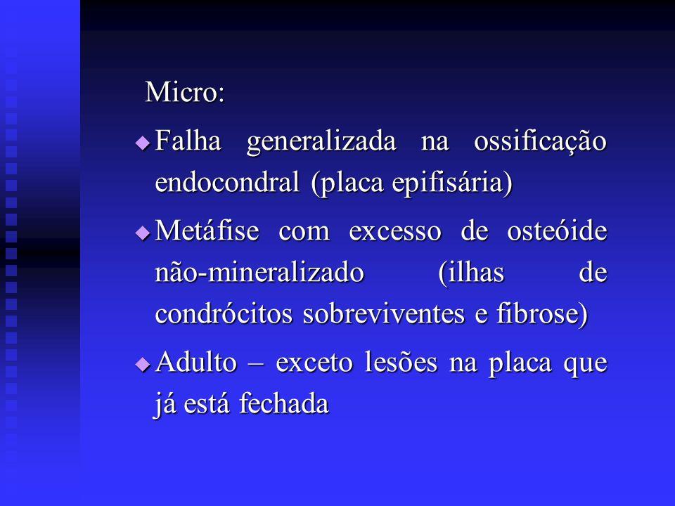 Micro: Micro:  Falha generalizada na ossificação endocondral (placa epifisária)  Metáfise com excesso de osteóide não-mineralizado (ilhas de condróc