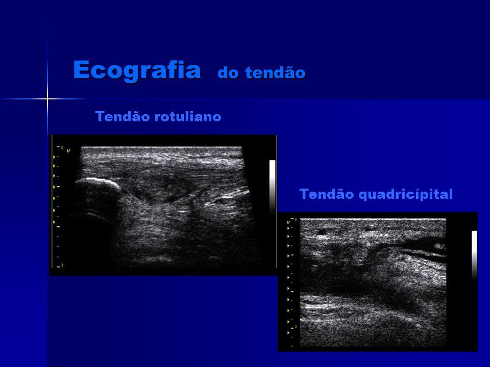 Ecografia do tendão Tendão rotuliano Tendão quadricípital