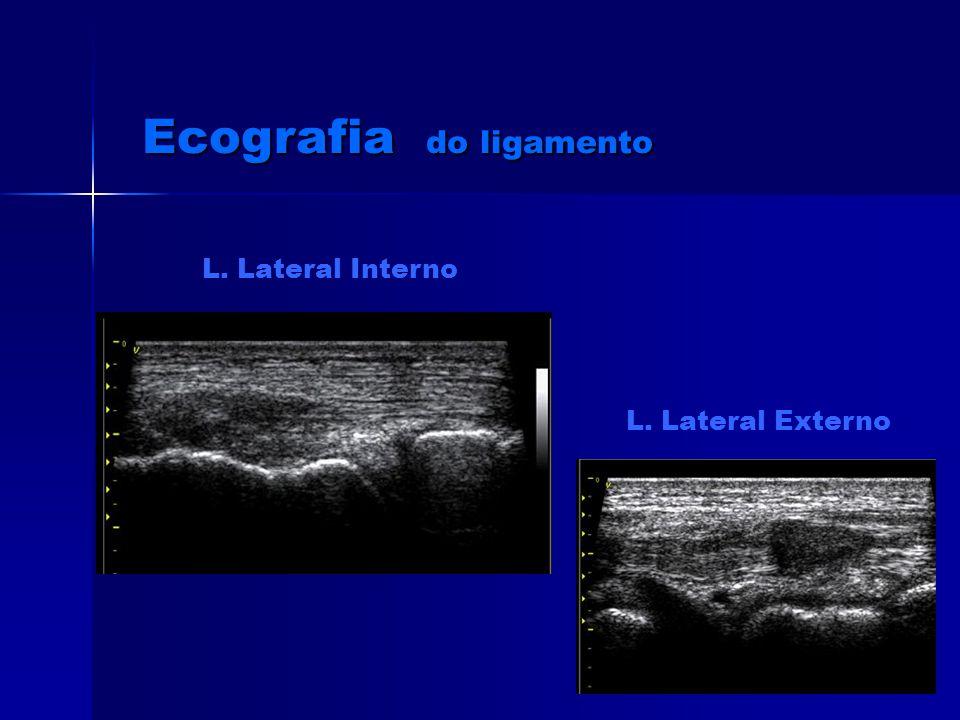 Ecografia do ligamento L. Lateral Interno L. Lateral Externo