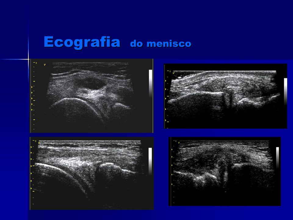 Ecografia do menisco