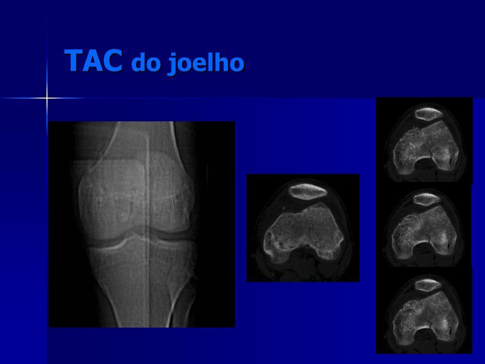 TAC do joelho