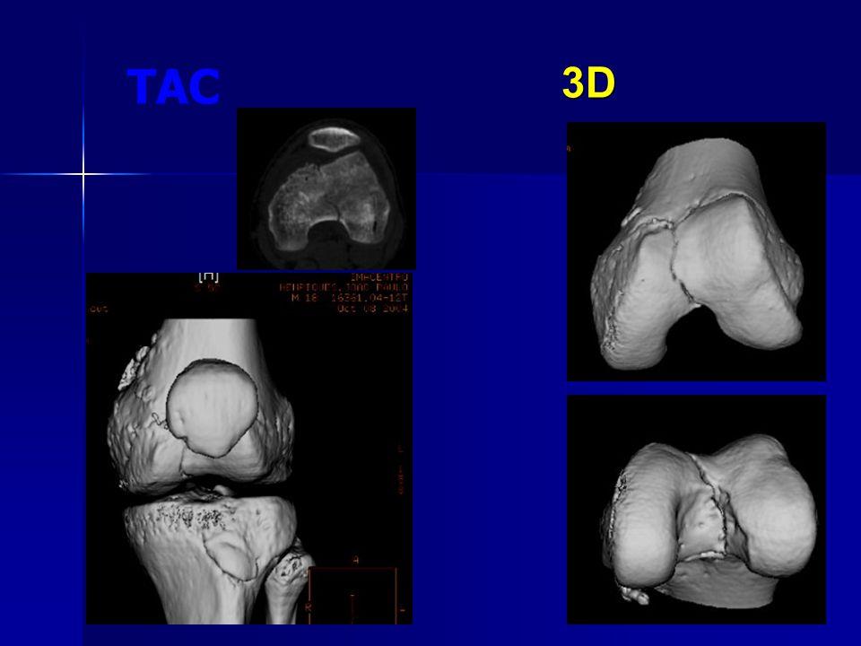 Coronal MPR 3D3D TAC