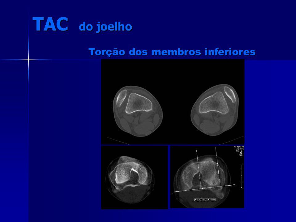 TAC do joelho Torção dos membros inferiores Torção dos membros inferiores