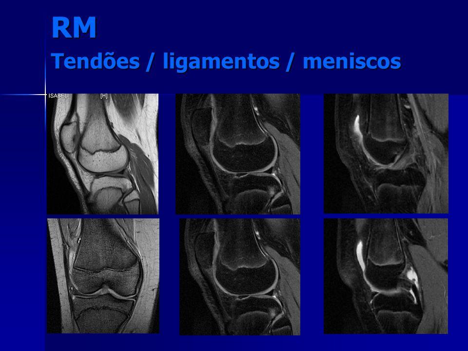Tendões / ligamentos / meniscos RM
