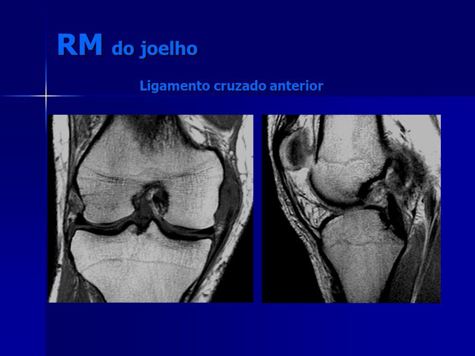 Ligamento cruzado anterior RM do joelho