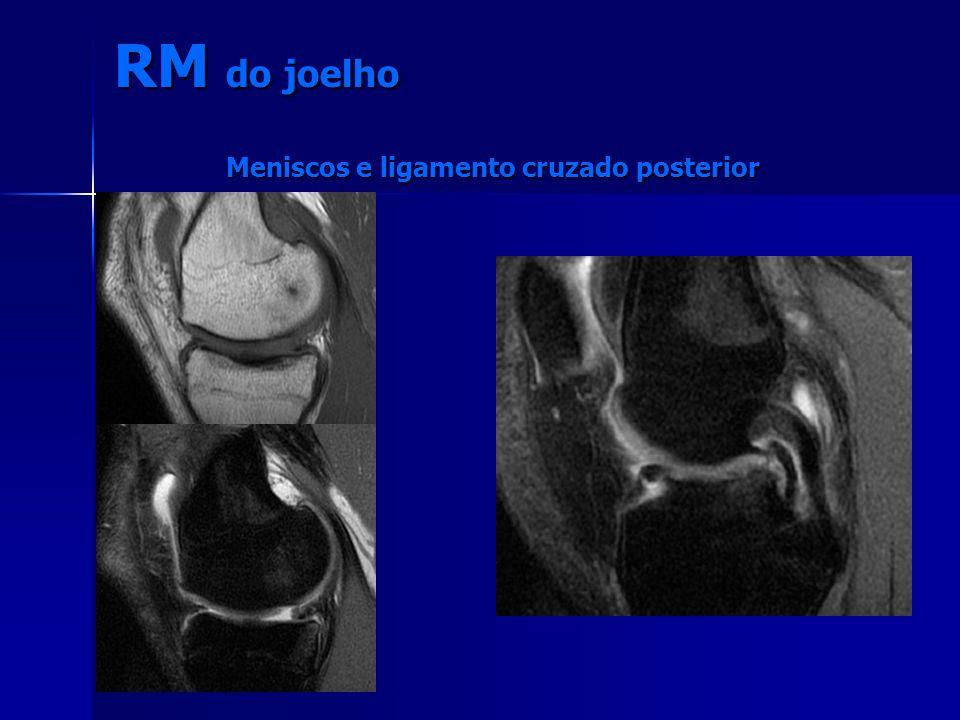 Meniscos e ligamento cruzado posterior RM do joelho