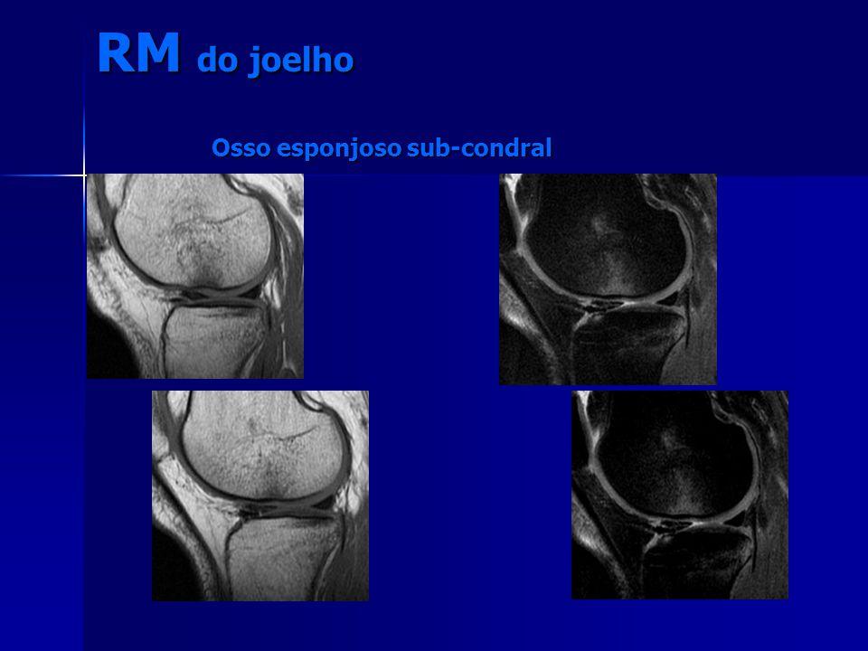 Osso esponjoso sub-condral RM do joelho