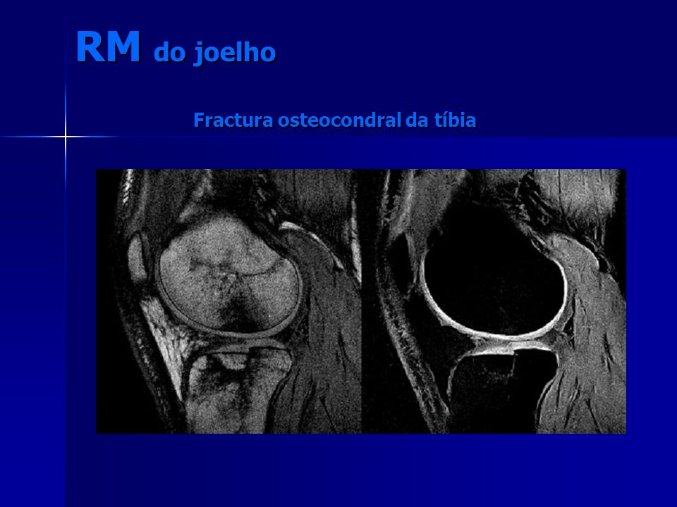 Fractura osteocondral da tíbia RM do joelho