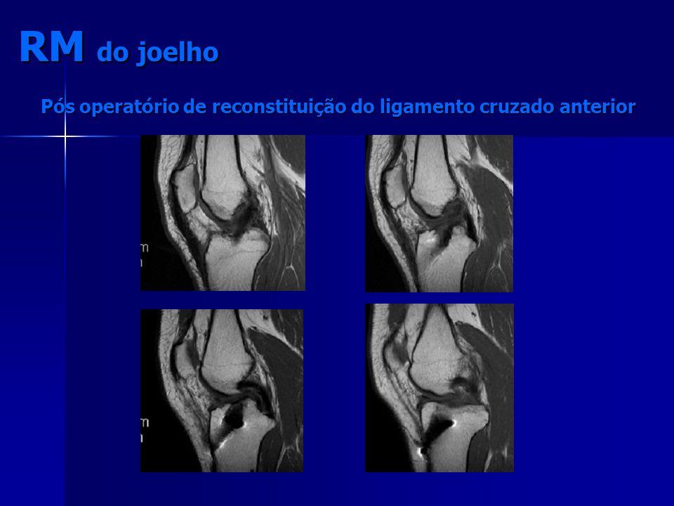Pós operatório de reconstituição do ligamento cruzado anterior RM do joelho