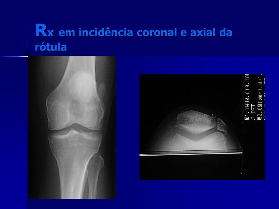 R x em incidência coronal e axial da rótula