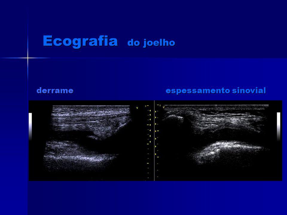 bursite crónica Bursite aguda Ecografia do joelho