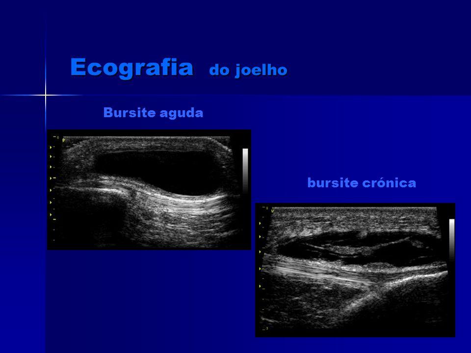 quisto Baker osteocondromatose Ecografia do joelho