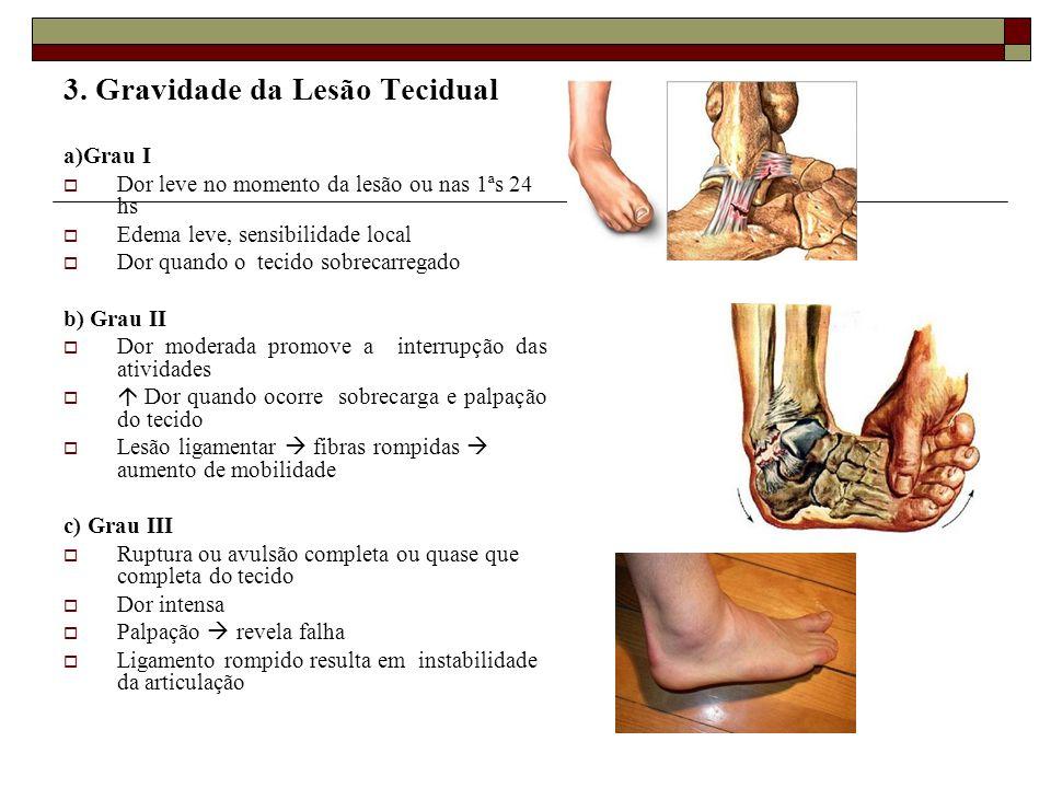 3. Gravidade da Lesão Tecidual a)Grau I  Dor leve no momento da lesão ou nas 1ªs 24 hs  Edema leve, sensibilidade local  Dor quando o tecido sobrec