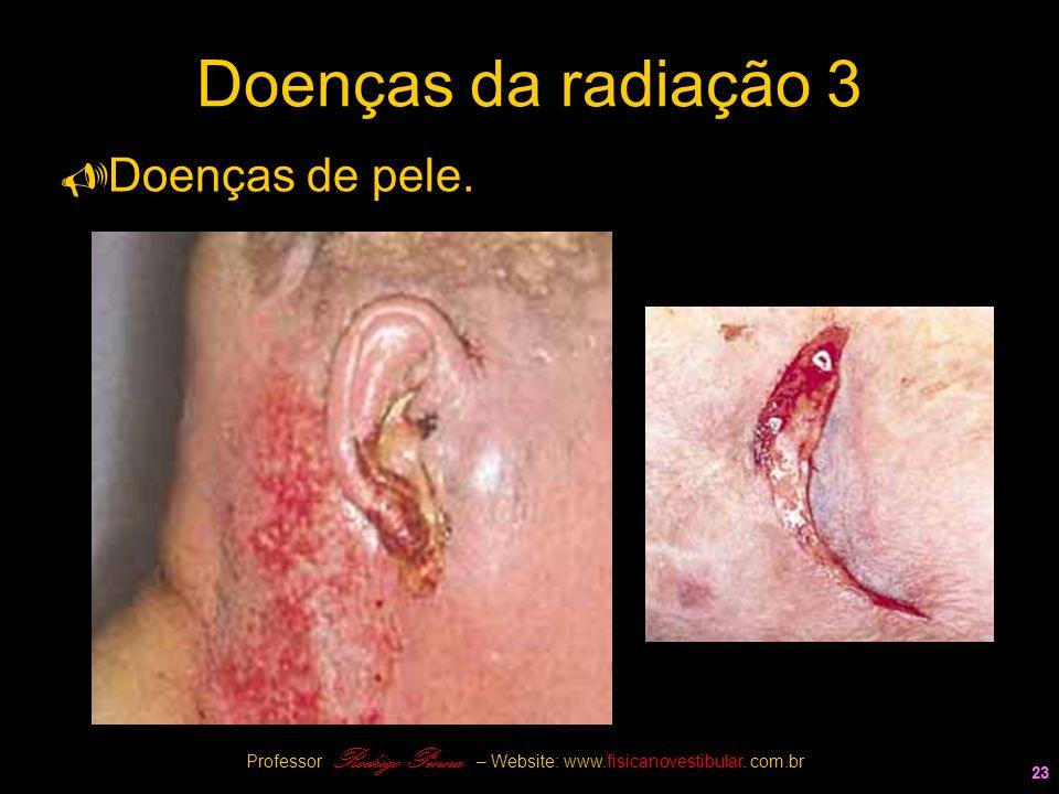 23 Doenças da radiação 3  Doenças de pele. 23 Professor Rodrigo Penna – Website: www.fisicanovestibular. com.br