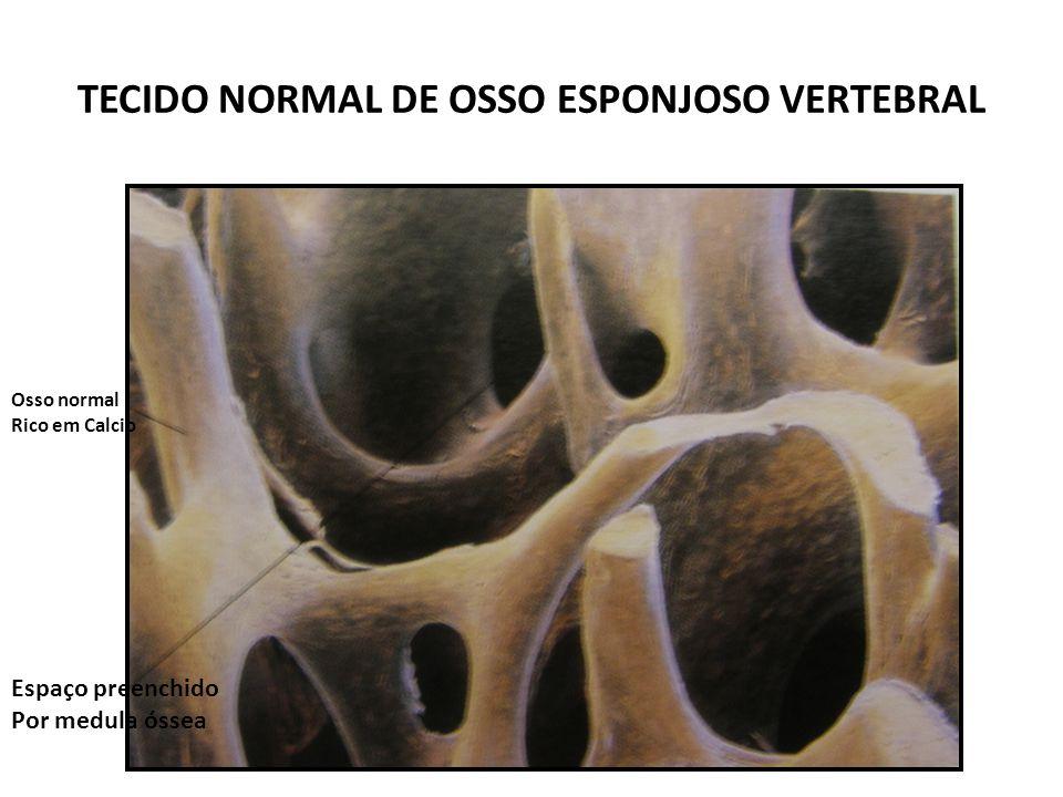 TECIDO NORMAL DE OSSO ESPONJOSO VERTEBRAL Osso normal Rico em Calcio Espaço preenchido Por medula óssea