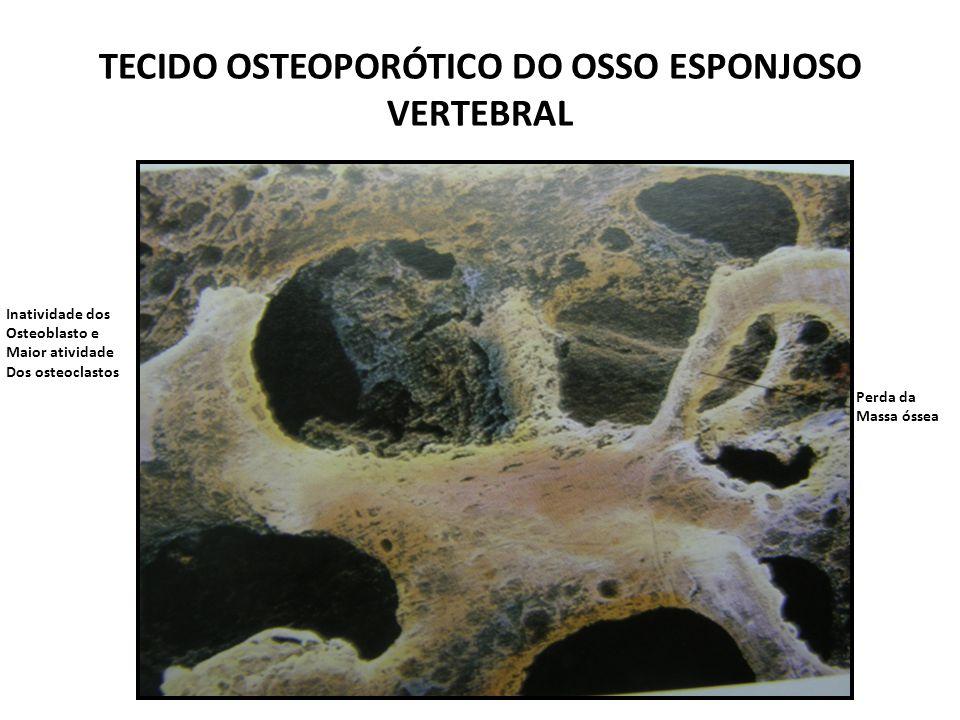 TECIDO OSTEOPORÓTICO DO OSSO ESPONJOSO VERTEBRAL Perda da Massa óssea Inatividade dos Osteoblasto e Maior atividade Dos osteoclastos