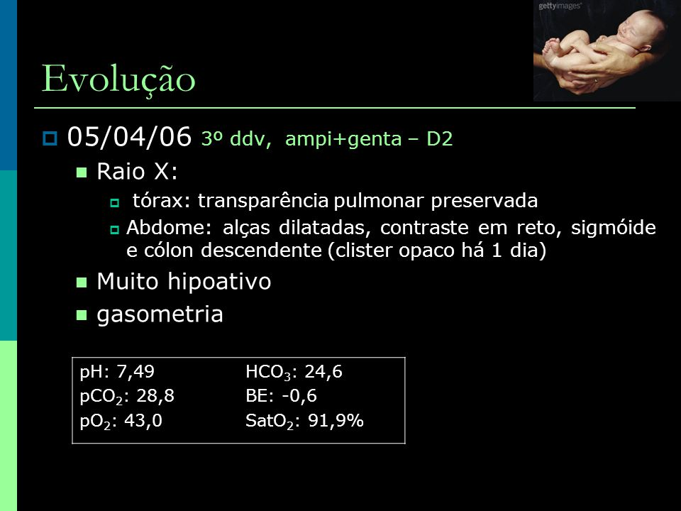 Evolução  05/04/06 3º ddv, ampi+genta – D2  Raio X:  tórax: transparência pulmonar preservada  Abdome: alças dilatadas, contraste em reto, sigmóid