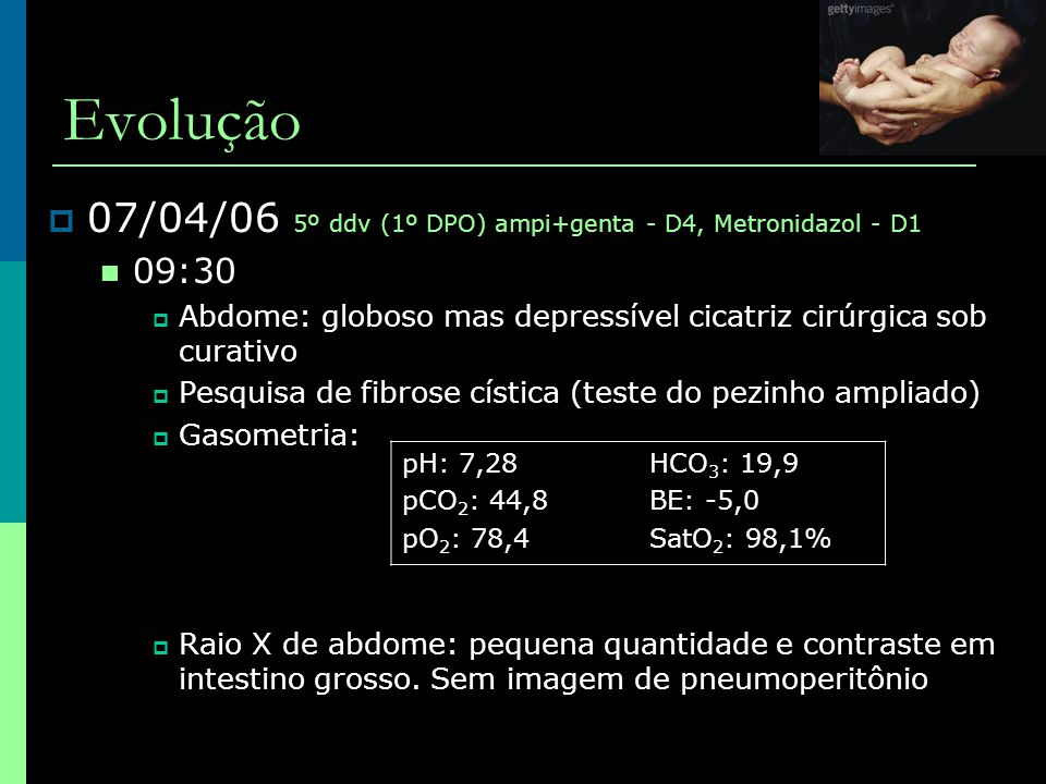 Evolução  07/04/06 5º ddv (1º DPO) ampi+genta - D4, Metronidazol - D1  09:30  Abdome: globoso mas depressível cicatriz cirúrgica sob curativo  Pes
