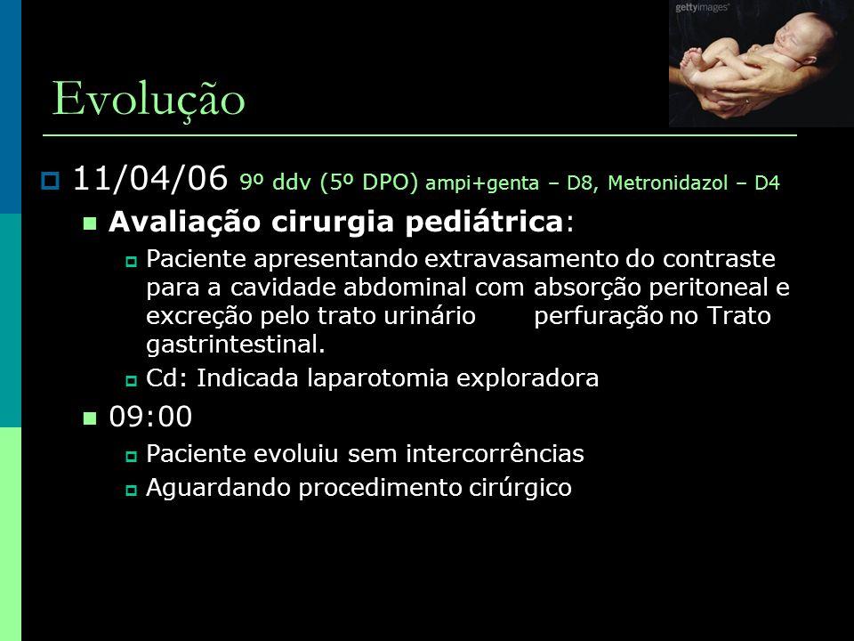 Evolução  11/04/06 9º ddv (5º DPO) ampi+genta – D8, Metronidazol – D4  Avaliação cirurgia pediátrica:  Paciente apresentando extravasamento do cont