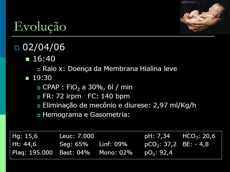 Evolução  02/04/06  16:40  Raio x: Doença da Membrana Hialina leve  19:30  CPAP : FiO 2 a 30%, 6l / min  FR: 72 irpm FC: 140 bpm  Eliminação de